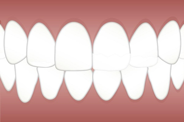 Best Teeth Whitening Strips – Choosing The Best