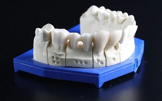Is A Crown With No Root Canal Possible?