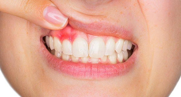 Can A Waterpik Damage Your Gums?